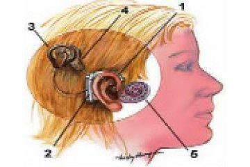 Cochlear Implant - Guldborgsund Frivilligcenter